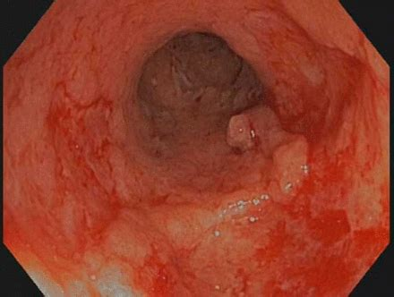Thromboembolism in active ulcerative colitis | BMJ Case