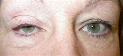 Drooping upper lids (ptosis) - Eastbourne Eye Clinic