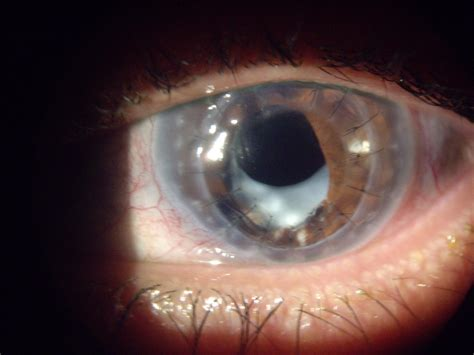 Cornea Transplants and GVR Scleral Lens - ScleralLens